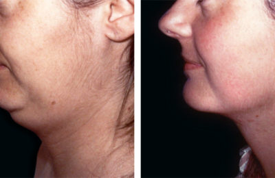 Tightening the skin of the chin and neck and strengthening the chin