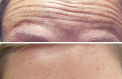 The horizontal lines of the forehead - wrinkles of wonder